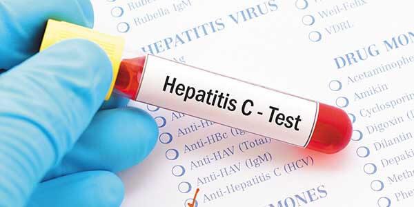 Хронический гепатит С: симптомы у мужчин и женщин при минимальной, умеренной и выраженной степени активности, код по МКБ 10, лечение, сколько с ним живут