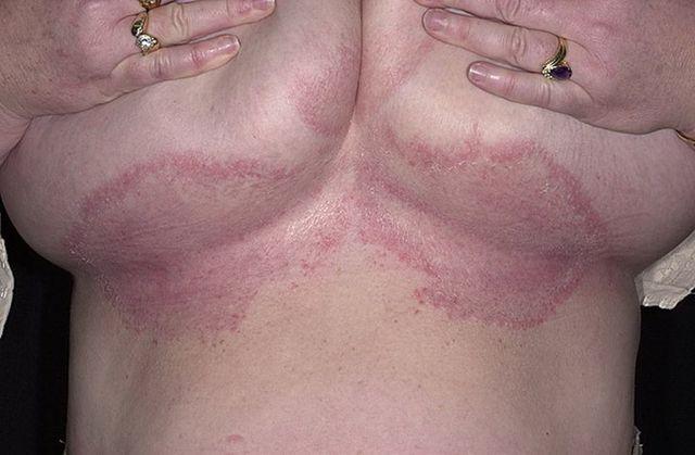 Грибок под грудью: фото, симптомы, виды, причины и лечения микоза под молочными железами