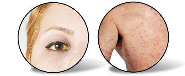 Вирусный гепатит А: сезонность, диагностика, профилактика