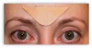 Пластырь от морщин: виды и применение на лбу, между бровями, для носогубных складок, вокруг глаз