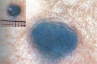 Папилломатозный невус: причины появления, виды, опасные признаки, методы лечения