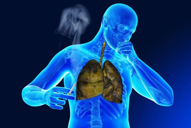 Бронхит курильщика: как и чем лечить