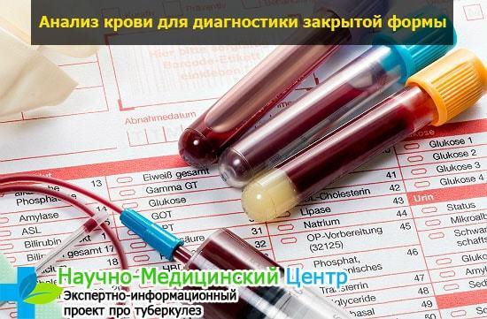 Анализ крови на туберкулез: что показывает