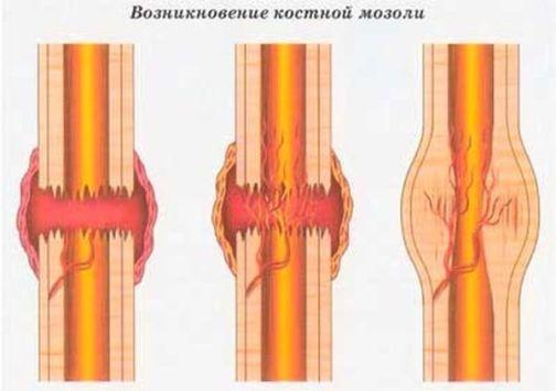 Костная мозоль: что это такое, как выглядит, почему и через сколько образуется, как избавиться