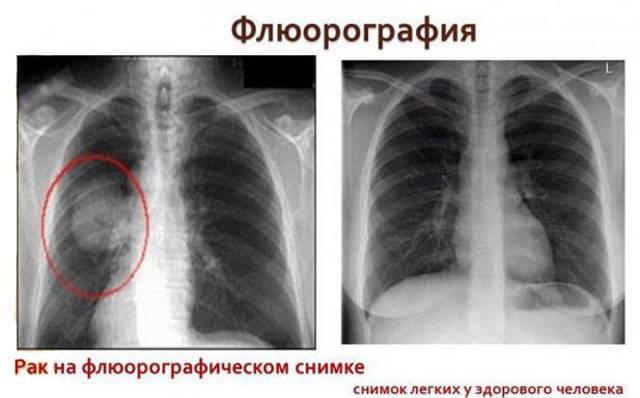 Показывает ли флюорография рак легких: особенности диагностики