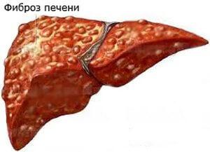 Как проявляется очаговый фиброз