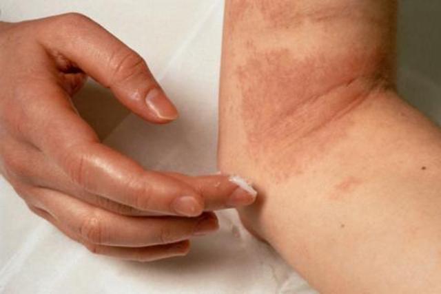 Мазь с цинком от дерматита: отзывы, показания к применению у детей и взрослых