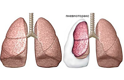 Симптомы пневмоторакса: на что обращать внимание