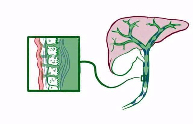 Холангит: что это такое, классификация - острый, хронический, склерозирующий, первичный билиарный, гнойный, симптомы у взрослых и детей, лечение, диета