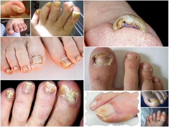 Грибок ногтей на ногах: что такое онихомикоз, первые признаки, фото начальной стадии
