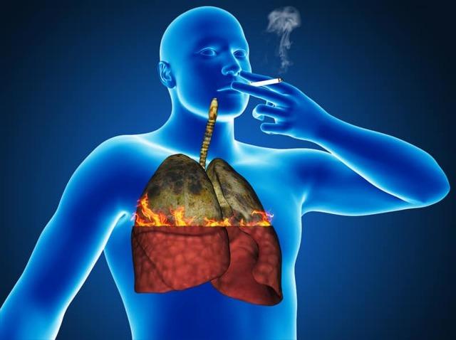 Как связаны туберкулез и курение