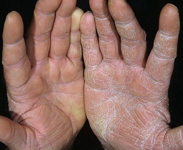 Псориаз ладоней: виды, причины, лечение традиционными и народными средствами