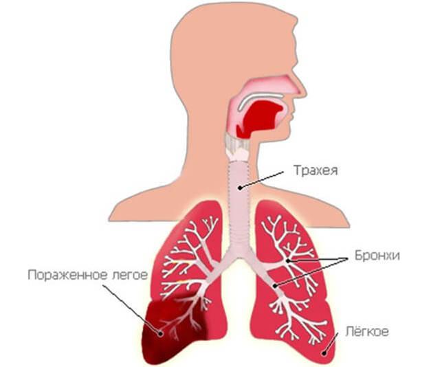 Стафилококковая Пневмония: Диагностика, Лечение, Осложнения