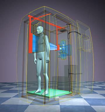 Флюорография легких: показания к проведению