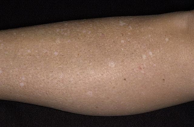 Белое пятно на коже у ребенка: что это значит, почему появляется и как лечить