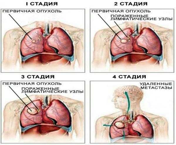 Поднимается ли температура при раке легких