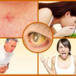 Болезни печени: какие бывают заболевания, первые признаки проблем, симптомы нездорового органа у взрослого человека, какие показатели крови указывают на патологию
