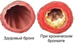 Виды бронхита и их характерные симптомы