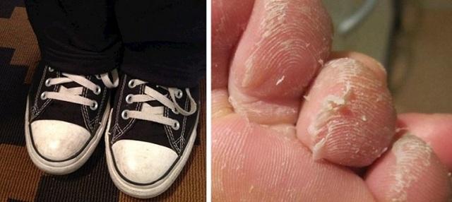 Шелушение кожи и покраснение на пальцах ног и ступнях у ребенка и взрослого
