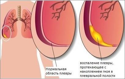 Симптомы Плеврита Легких и Особенности Его Лечения