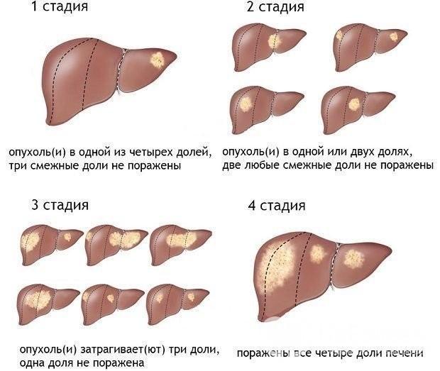 Гемангиома печени: причины возникновения, появления у взрослых