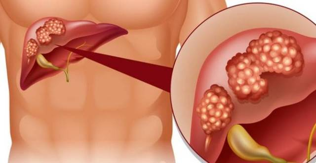 Гепатит B: симптомы и лечение у женщин, мужчин