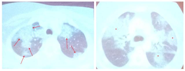 Симптом матового стекла в легких: что это такое