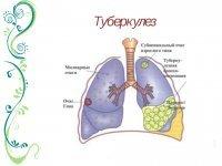 Генерализованный Туберкулез: Симптомы, Классификация, Лечение