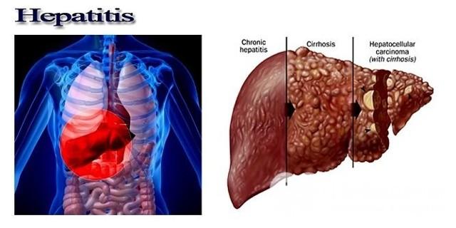 Гепатит С - что это такое, симптомы, разновидности, формы, осложнения