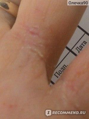 Крем Зорька при дерматите у взрослых и детей: показания, инструкция, отзывы