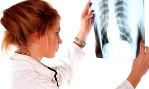 Причины рака легких: что нужно знать