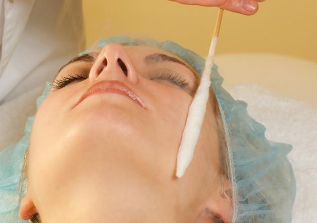 Удаление бородавок жидким азотом: показания и методика проведения прижигания