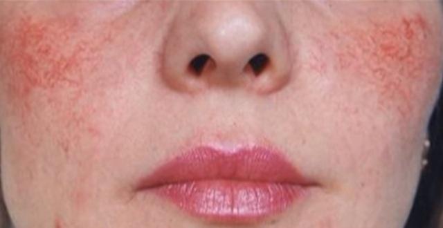 Купероз на лице: причины и лечение сосудистых звездочек в домашних условиях