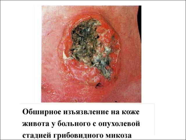 Микоз — что это: фото, симптомы, лечение и профилактика грибкового поражения