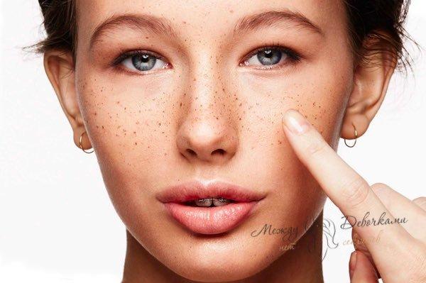 Чем в домашних условиях отбелить пигментные пятна на лице: эффективные средства