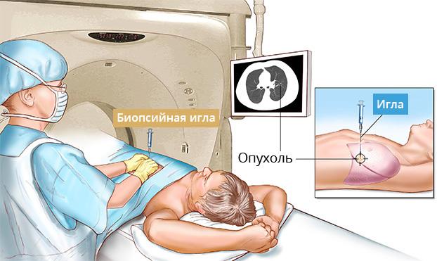 Комплексная диагностика рака легких