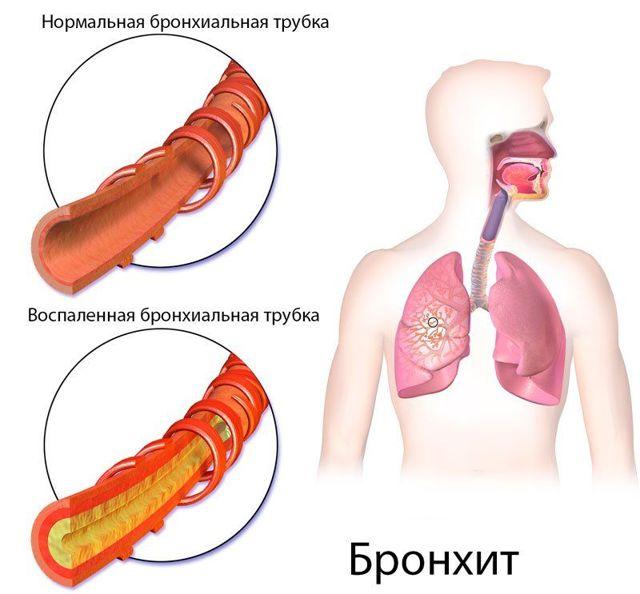 Как отличить бронхит от пневмонии: характерные симптомы
