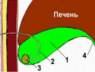 Как растворить камни в желчном пузыре?