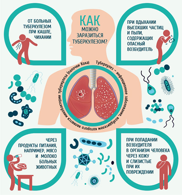 Контакт с больным туберкулезом: последствия для здорового человека