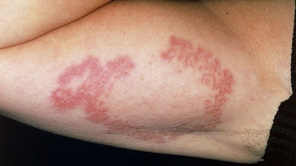 Пятно на коже с красным ободком: фото, причины, провоцирующие факторы, лечение