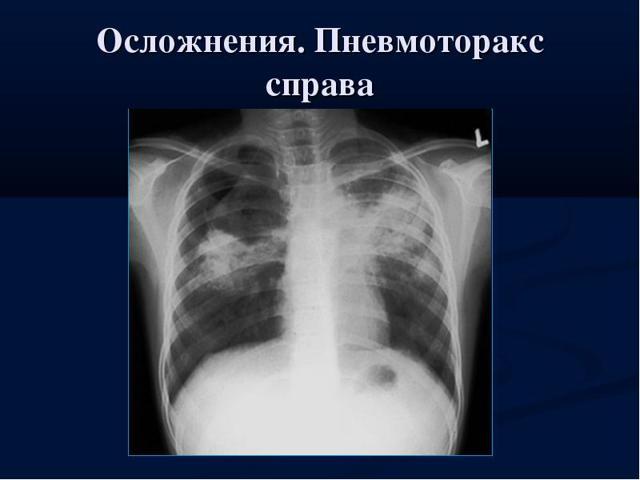 Травматический пневмоторакс: как избежать последствий