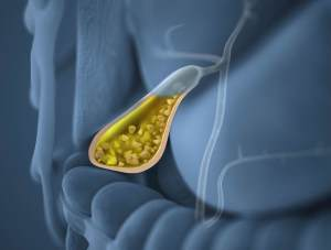 Анализы при холецистите: биохимический, билирубин