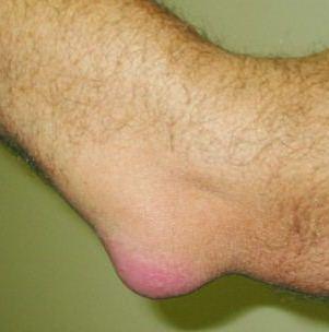 Костная мозоль после перелома: что это такое, когда образуется, как выглядит и как ее убрать