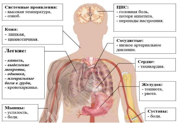Атипичная пневмония и ее симптомы
