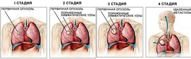 Как проходит удаление легкого при раке