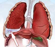 Как развивается плеврит легких