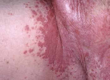 Красные пятна в паху у мужчин и женщин: причины и лечение раздражения и зуда