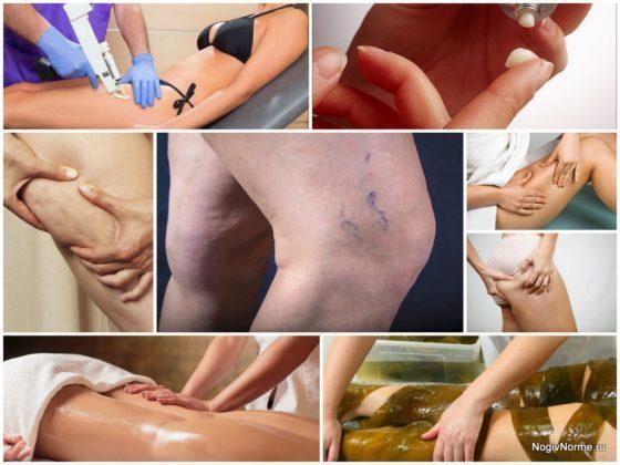 Как избавиться от целлюлита при варикозе: медикаментозное лечение и домашние методы
