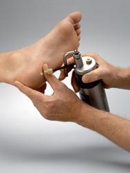 Удаление папиллом жидким азотом – криодеструкция, заморозка новообразований