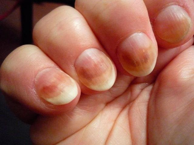 Офломил — лак от грибка ногтей: отзывы, цена, инструкция по применению, аналоги